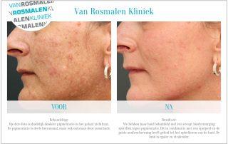 Pigmentvlekken verwijderen met huidtherapie