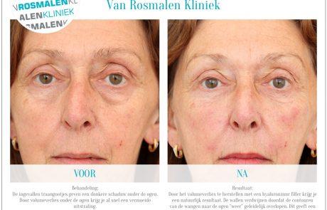 Traangoot behandeling | Van Rosmalen Kliniek
