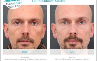 Voor en na foto's botox