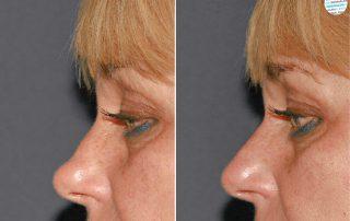 Neuscorrectie met fillers voor- en na foto
