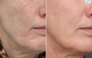 Anti-aging peeling voor- en na foto