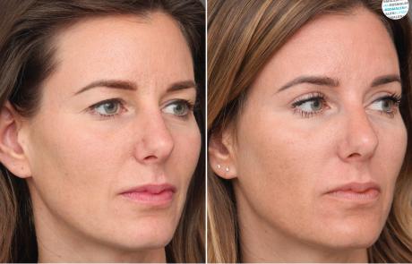 Hangende bovenoogleden voor- en na foto