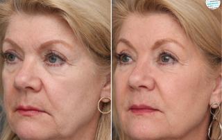 Minder verslapping | Minder vermoeid | Liquid facelift voor- en na foto