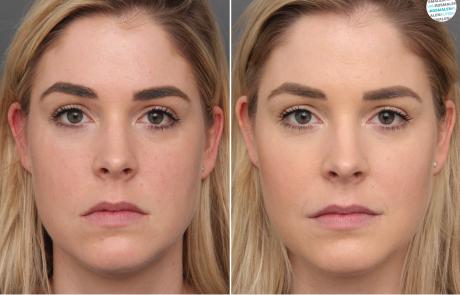 Subtiel en natuurlijk resultaat met fillers en botox voor- en na foto