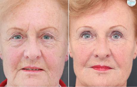 Botox fronsrimpel voor- en na foto