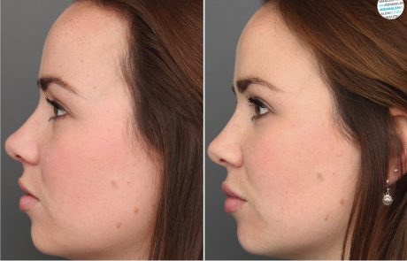 Profiel gezicht verbeteren voor- en na foto