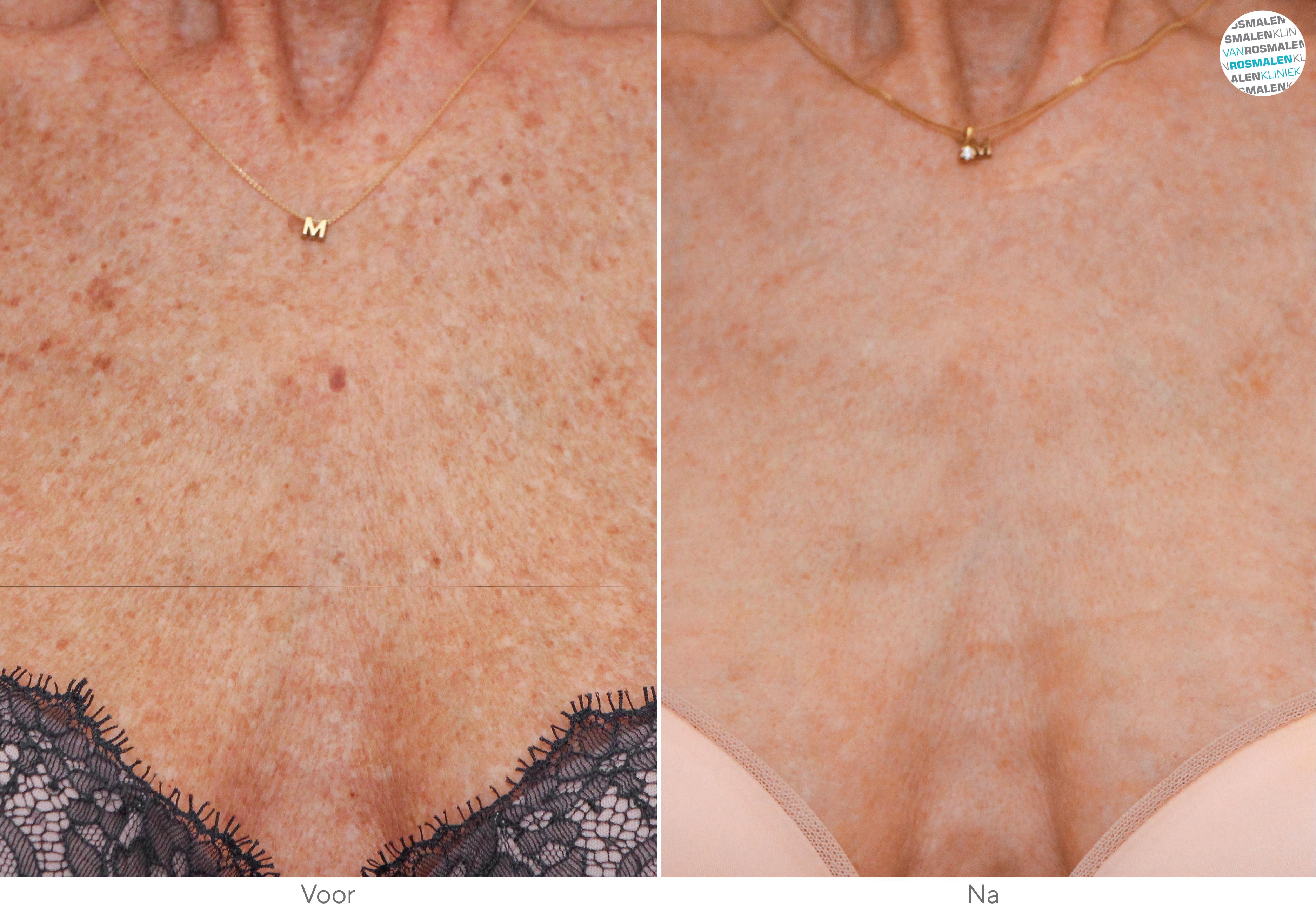Pigmentvlekken voor- en na foto