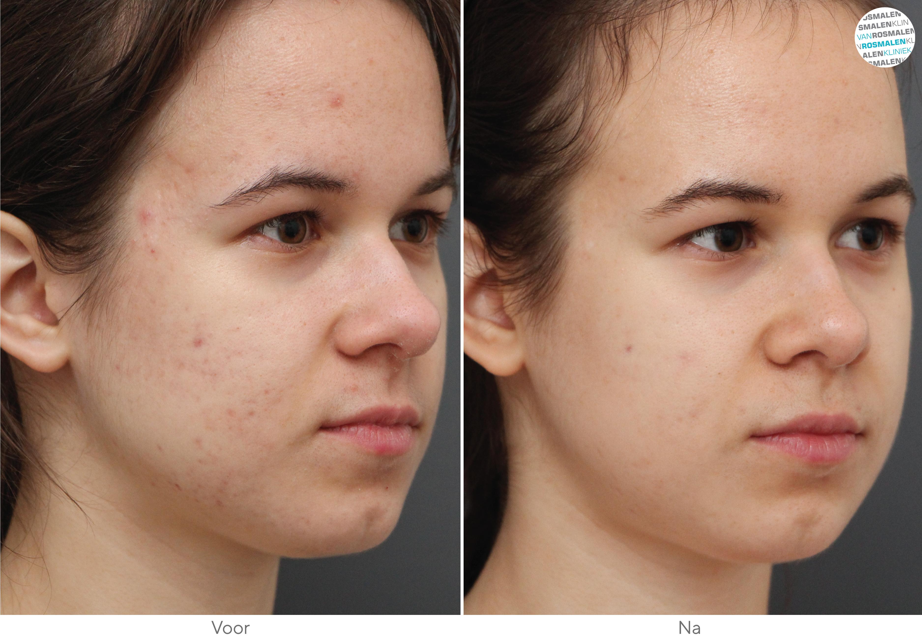 Peeling acné voor- en na foto