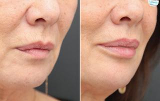 Fillers lippen mondhoeken voor- en na foto