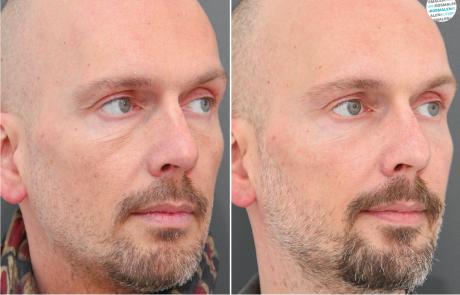 Frons en voorhoofdrimpels voor- en na foto