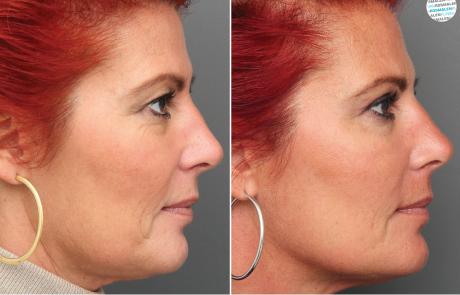 Frisse open blik - Hangende bovenoogleden voor- en na foto