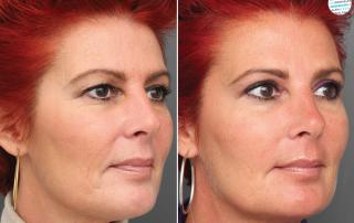 Liquid facelift voor- en na foto