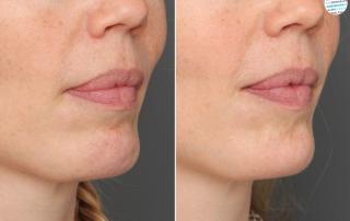 Botox kinputjes voor- en na foto