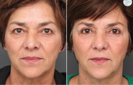 Overhangende bovenoogleden | bovenooglidcorrectie voor- en na foto