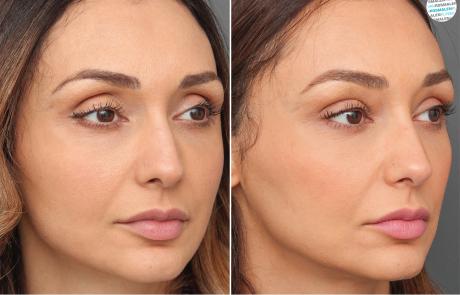 Overhangende bovenoogleden | ooglidcorrectie voor- en na foto