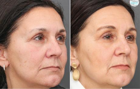 Laserbehandeling Pigmentvlekken voor- en na foto