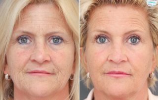 Kraaienpootjes verminderen met botox voor- en na foto