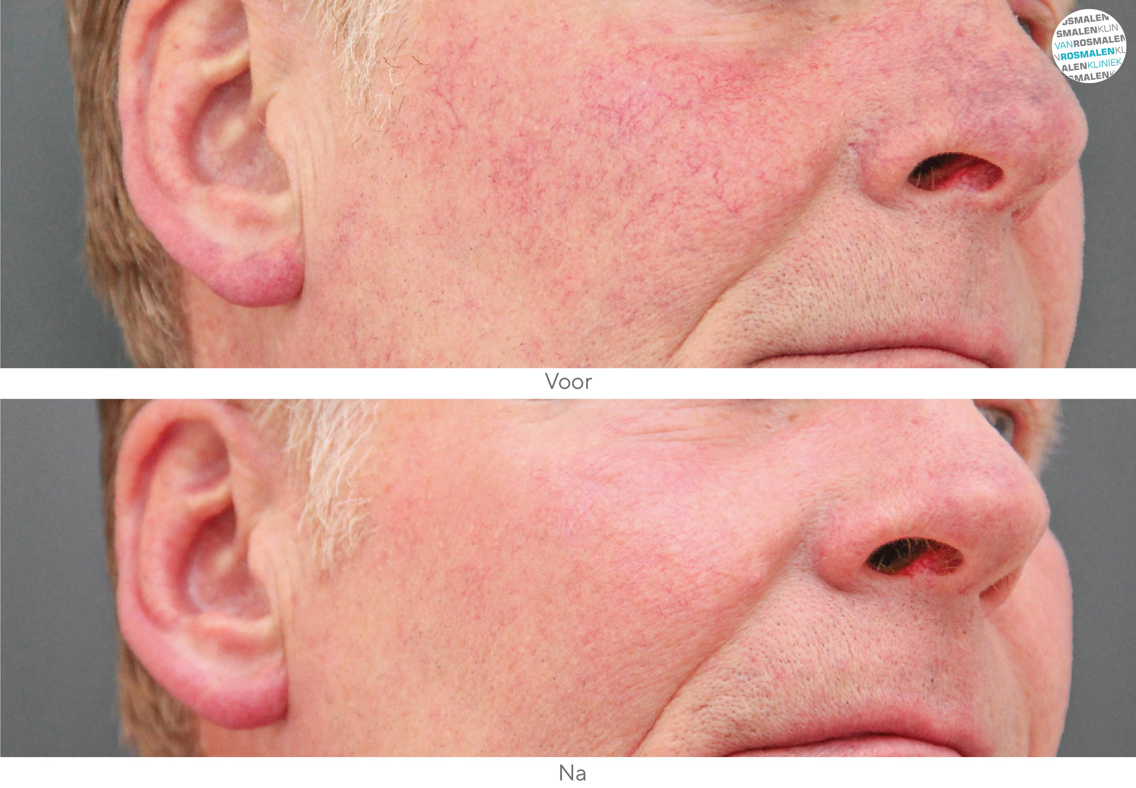 Laserbehandeling rosacea voor- en na foto
