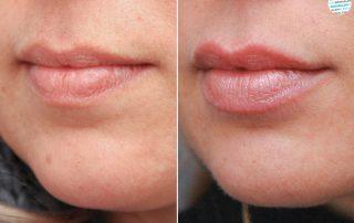 Lippen opvullen | lip fillers voor- en na foto