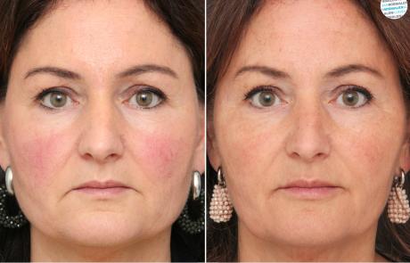 Mondhoeken botox behandeling voor- en na foto
